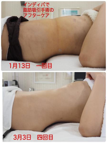 インディバで脂肪吸引手術のアフターケア その後_f0135940_01560562.jpg