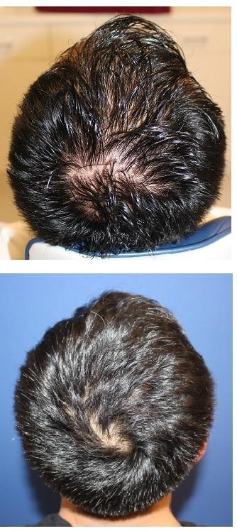 毛髪育毛治療 ベネブ5回治療 + AAPE治療1回後_d0092965_00571181.jpg