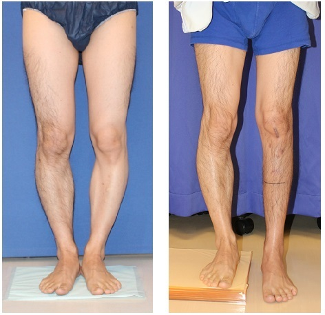 左下腿プリサイス:precice 脚延長 術後6か月_d0092965_02522853.jpg