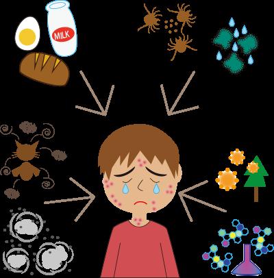 アレルギーそれともヒスタミン不耐性?_f0128026_18022594.png