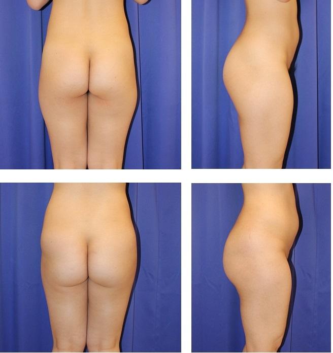 臀部上部~腰部 脂肪移植_d0092965_04060833.jpg