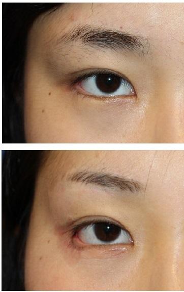 右目 たれ目形成 + 目じり切開 靭帯移動, ROOF切除術_d0092965_04524419.jpg