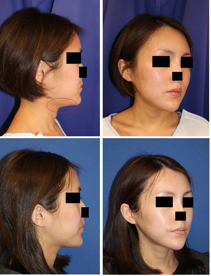 顎下アキュスカルプレーザー + 脂肪吸引 +  エンドタインリフト 術後2年再診時_d0092965_23485026.jpg