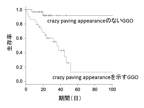 crazy paving GGOを呈するニューモシスチス肺炎は予後不良_e0156318_237430.png