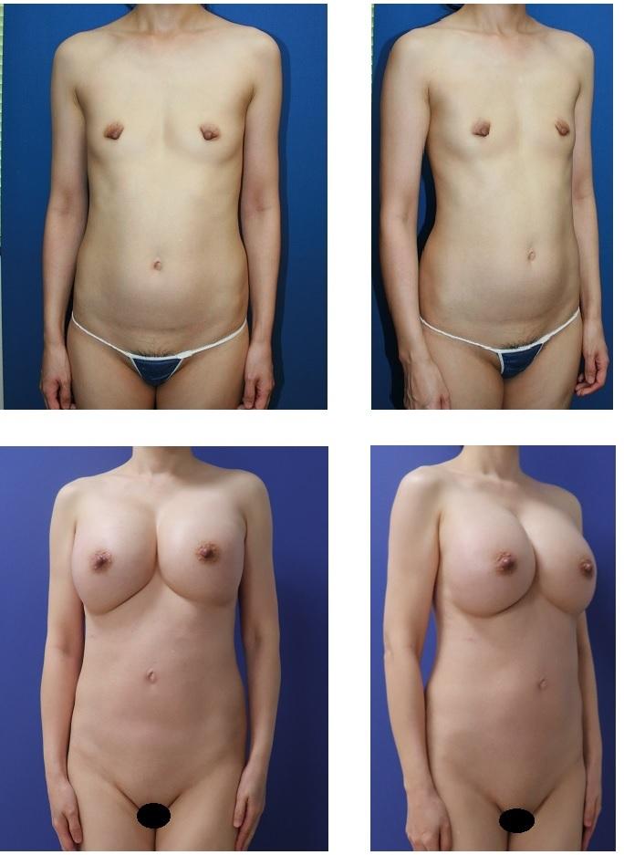 脂肪移植豊胸 合計6回  初回手術より 術後約10年再診時 定着がよく執刀医の記憶に強く残ったケース_d0092965_03302254.jpg