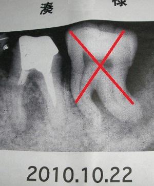 左下奥歯の抜歯後、その隣奥歯の救済_d0061678_21472843.jpg