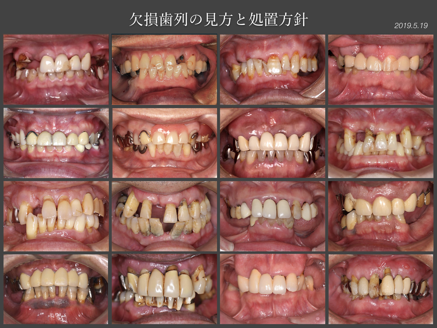 2019 臨床基本ゼミ・エントリー症例_f0103459_1352755.jpg
