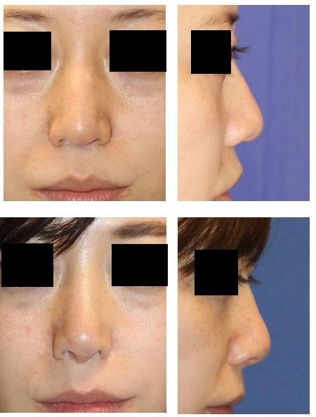 他院鼻中隔延長術後  鼻先を太くしたい  鼻口唇角部を下げたい(鼻柱の付け根を下に下げたい) とのオーダーに対して_d0092965_05124310.jpg