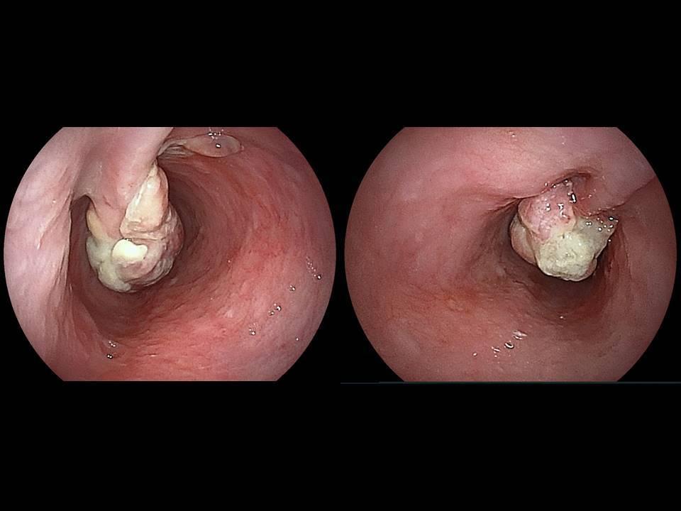 carcinosarcoma_b0180148_14204565.jpg