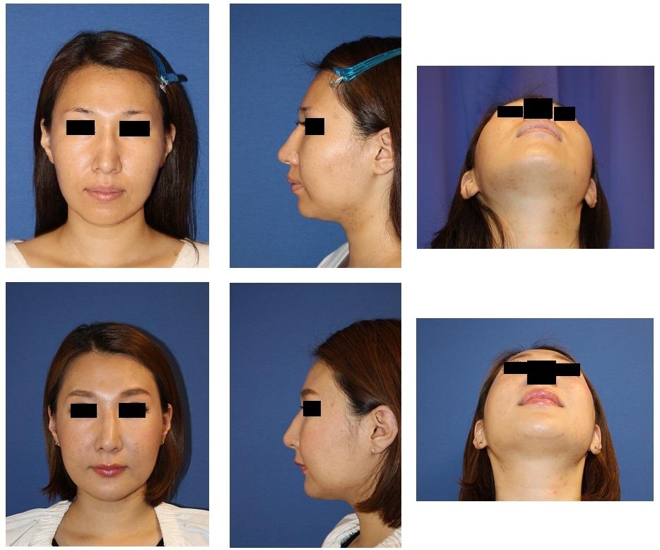 頬骨V時骨切術、 上下歯槽骨骨切後方移動術(セットバック) 術後約半年_d0092965_02372749.jpg