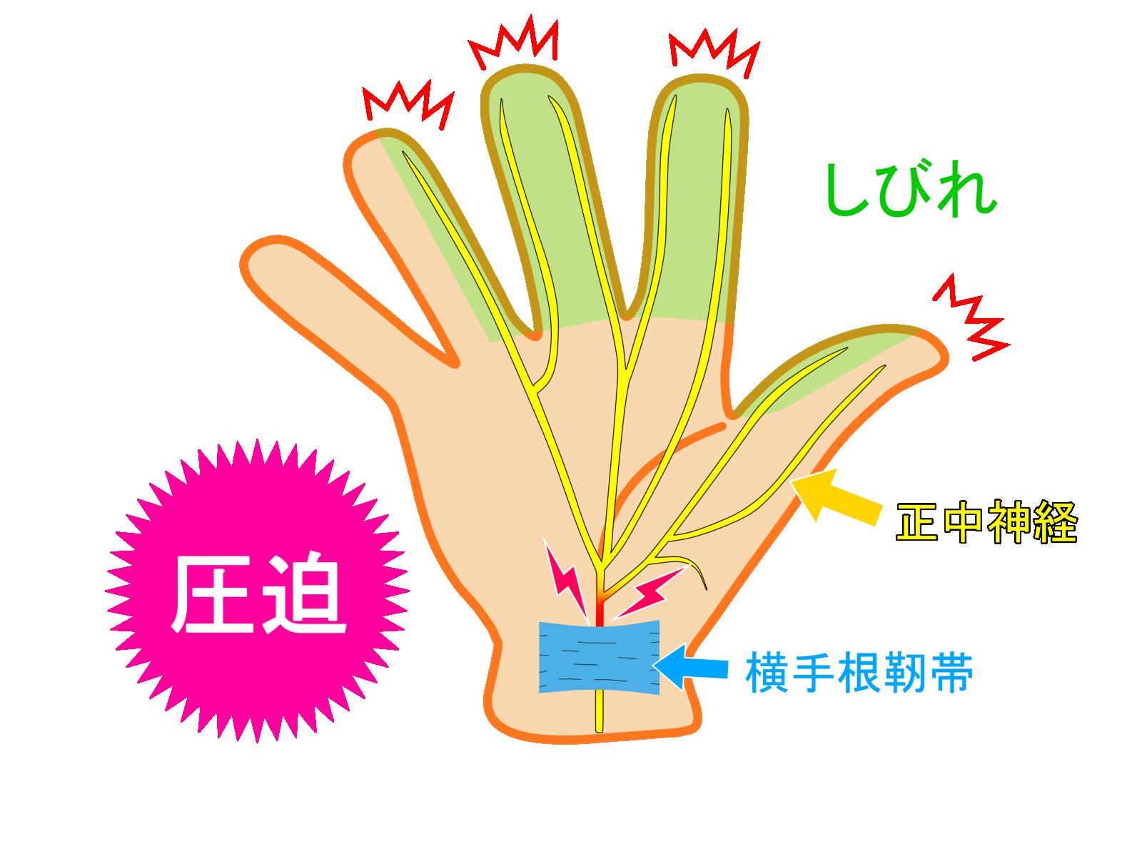 手根管症候群_a0296269_16250091.png