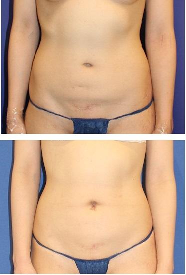 へそ形成術 + 下腹部 アキュスカルプレーザー 脂肪吸引_d0092965_03284467.jpg