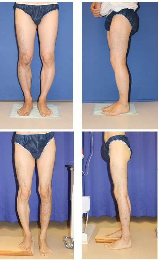 脚延長:precice(プリサイス) 右下腿術後約1年 左下腿術前  ,   悪質なSNS書き込みに対する刑事告訴の件_d0092965_03165636.jpg