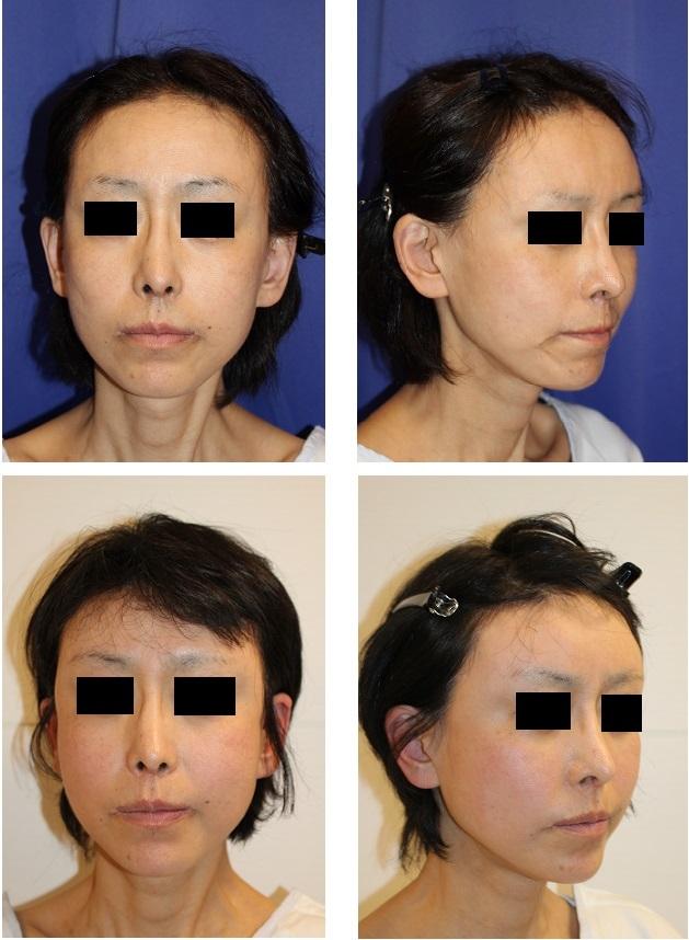 こめかみリフト、額リフト、口まわり脂肪移植 術後約1年4か月再診時_d0092965_06101802.jpg