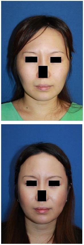 頬骨頬骨再構築法 、 ミラクルリフト 術後約半年_d0092965_02040532.jpg