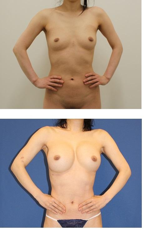 他院セリューション脂肪移植豊胸後  当院脂肪移植豊胸術(ベイザー脂肪吸引、ピュアグラフト併用、幹細胞増殖因子併用)  2クール術後  術後約半年_d0092965_04135848.jpg