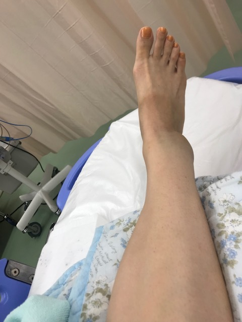 足骨折しました。_a0050302_13211296.jpg