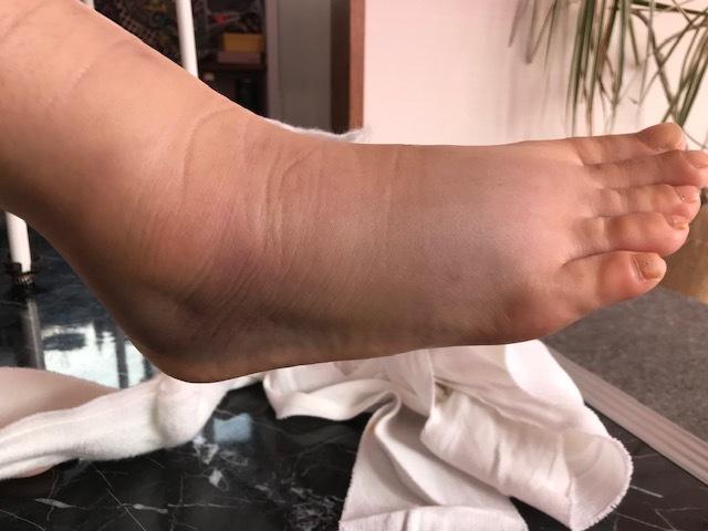足骨折しました。_a0050302_13241864.jpg