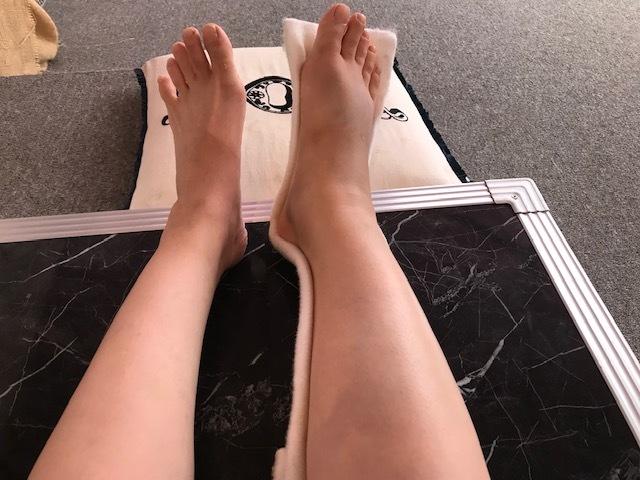 足骨折しました。_a0050302_13245631.jpg