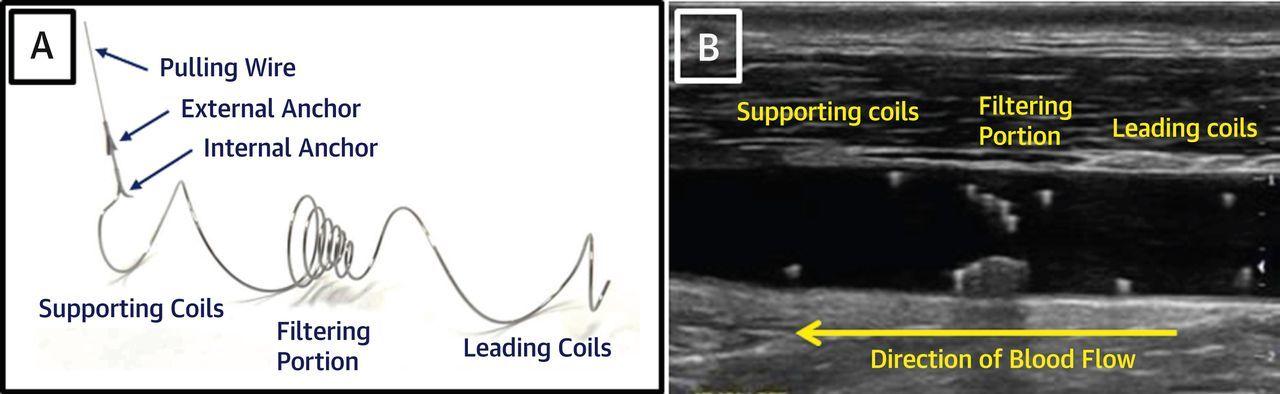 心房細動に対する経皮的頸動脈フィルターの実用性,安全性:JACC誌_a0119856_06402296.jpg