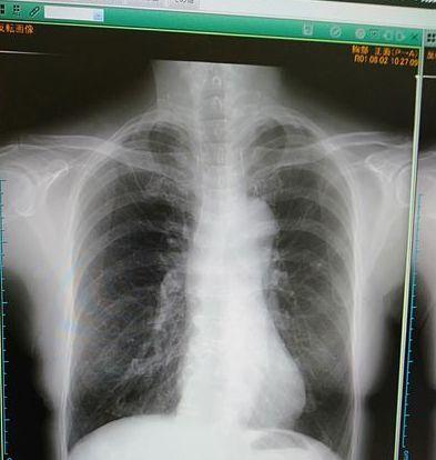 呼吸器内科受診_c0162128_15431256.jpg