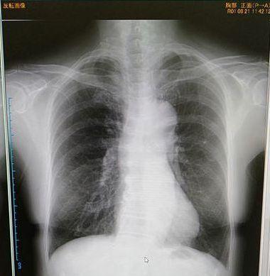 呼吸器内科受診_c0162128_15451342.jpg