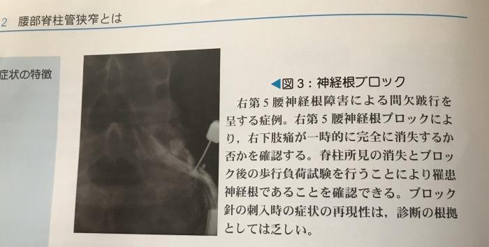 しくじりの根元はこれ→神経根障害_b0052170_15354501.jpg