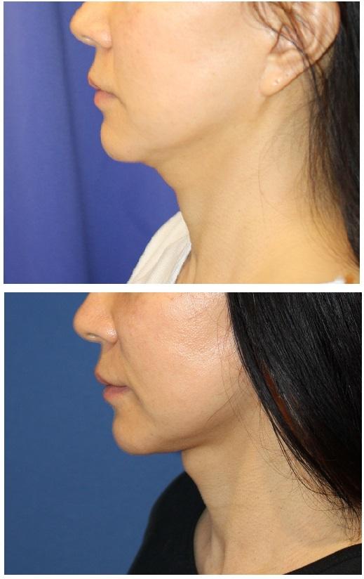 顎下+下顎縁 に対して  アキュスカルプレーザー+脂肪吸引+ ミントリフト_d0092965_03320370.jpg