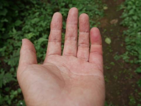 【キイロスズメバチ刺傷から1週間】痛み、腫れ、痒み終息8・28_c0014967_11131213.jpg