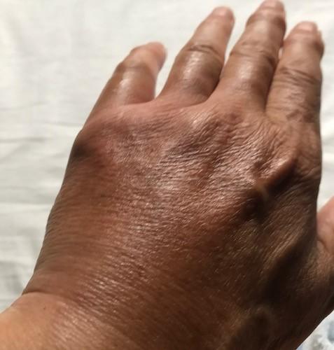 【キイロスズメバチ刺傷から1週間】痛み、腫れ、痒み終息8・28_c0014967_11132662.jpg