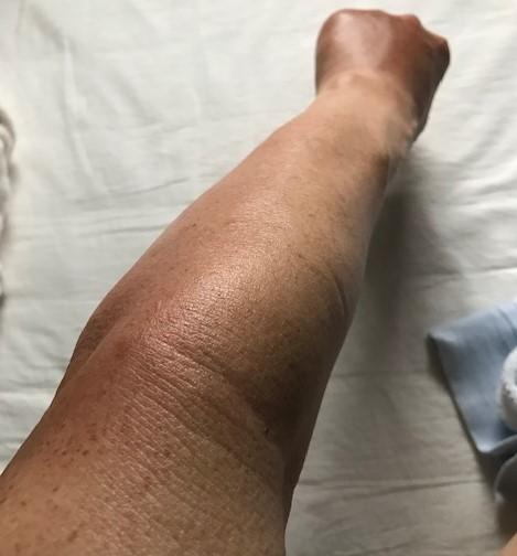 【キイロスズメバチ刺傷から1週間】痛み、腫れ、痒み終息8・28_c0014967_11133915.jpg