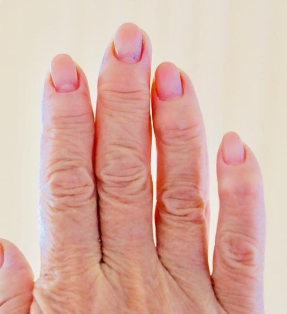 夏バテ予防と手指の変形とエクオール検査_d0348118_08224346.jpeg