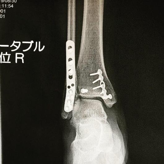 手術終わりました。_a0050302_21393125.jpeg