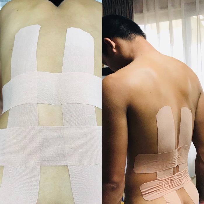 高校生男子腰痛と背中の痛み_b0173839_15251718.jpeg