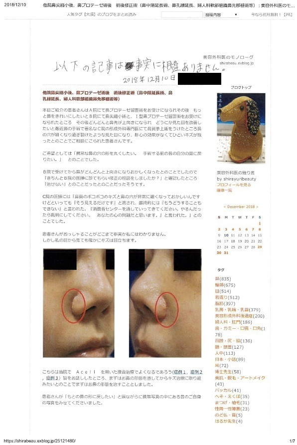 他院鼻尖縮小後、鼻プロテーゼ術後 術後修正術(鼻中隔延長術、鼻孔縁延長、婦人科軟部組織鼻先移植術等) 術後約17か月、他院術後キズ痕修正(Aセル:細胞外マトリックス)術後約16か月年再診時_d0092965_00181044.jpg