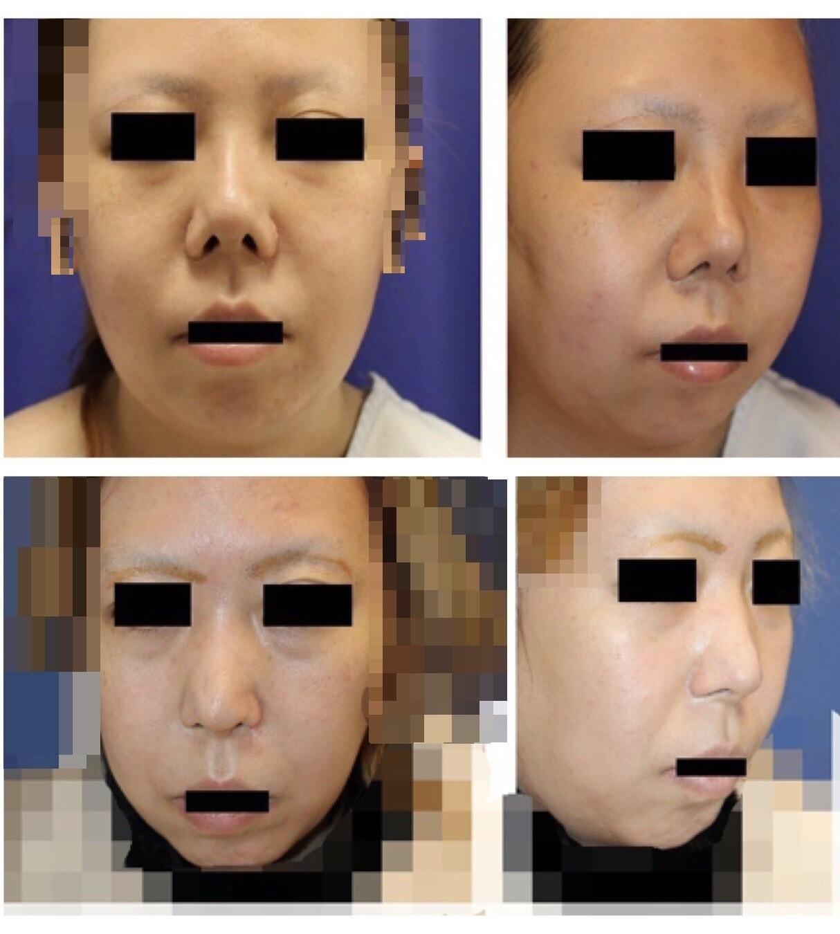 他院鼻尖縮小後、鼻プロテーゼ術後 術後修正術(鼻中隔延長術、鼻孔縁延長、婦人科軟部組織鼻先移植術等) 術後約17か月、他院術後キズ痕修正(Aセル:細胞外マトリックス)術後約16か月年再診時_d0092965_00231893.jpg