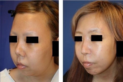 他院鼻尖縮小後、鼻プロテーゼ術後 術後修正術(鼻中隔延長術、鼻孔縁延長、婦人科軟部組織鼻先移植術等) 術後約13か月、他院術後キズ痕修正(Aセル:細胞外マトリックス)術後約1年再診時_d0092965_00260995.jpg