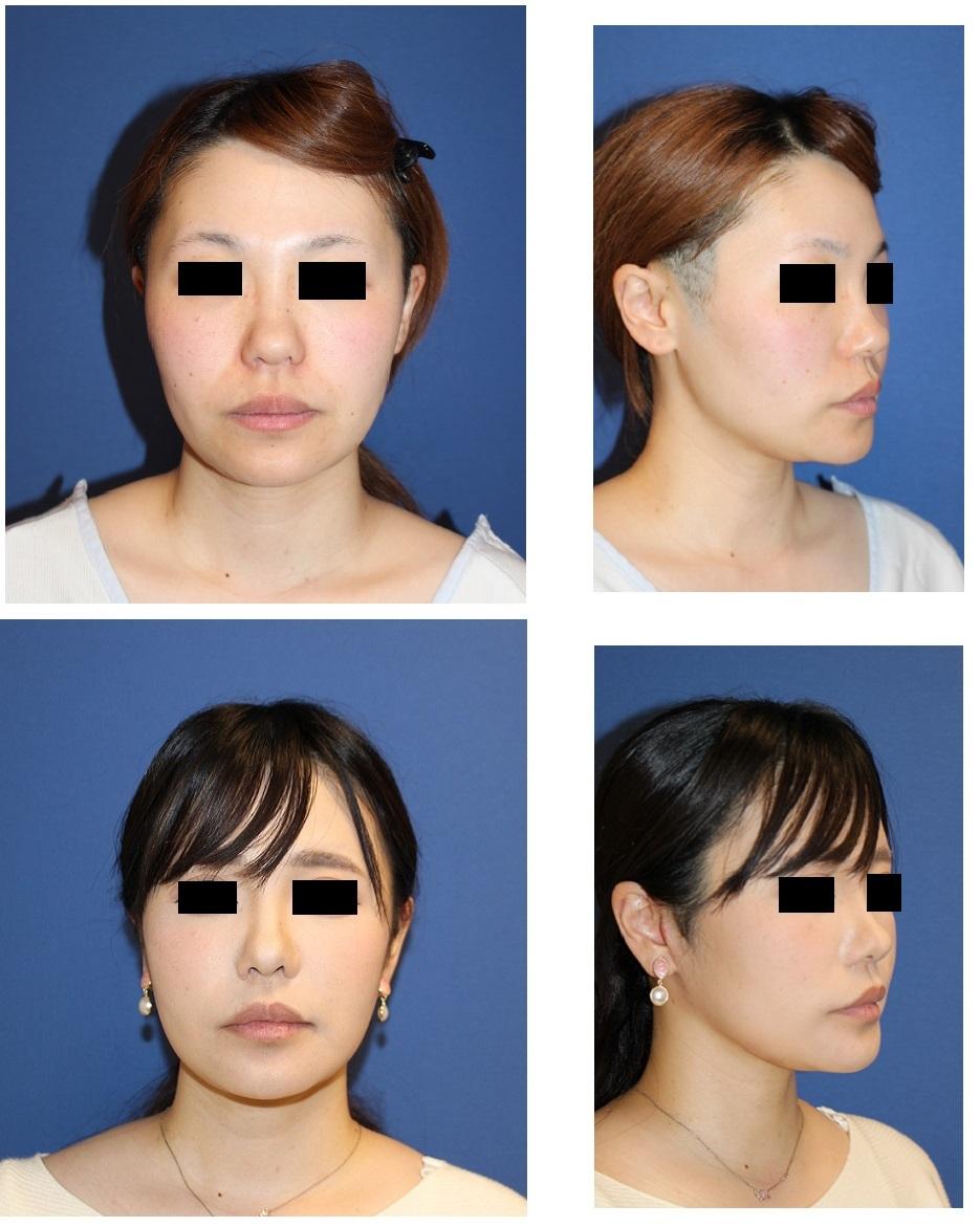 スマスリフト、鼻翼基部アパタイト形成術、ベイザー顎下脂肪吸引、ミントリフト 術後約半年再診時 (顎先骨切術、小鼻縮小より術後2年)_d0092965_18395496.jpg