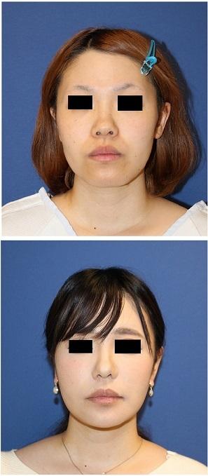 スマスリフト、鼻翼基部アパタイト形成術、ベイザー顎下脂肪吸引、ミントリフト 術後約半年再診時 (顎先骨切術、小鼻縮小より術後2年)_d0092965_18400447.jpg