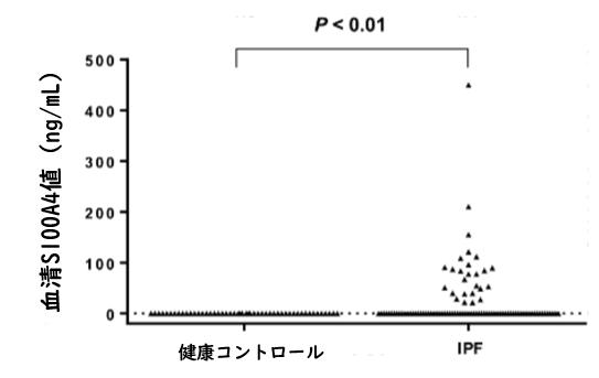 IPFにおける血清S100A4値は疾患進行のバイオマーカーとして有用_e0156318_9354057.png