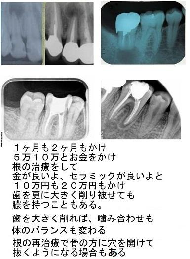 歯科治療は最小限に_d0338857_04290346.jpg