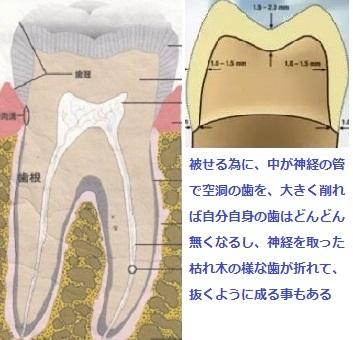 歯科治療は最小限に_d0338857_04292518.jpg