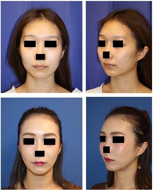頬骨弓骨切術、バッカルファット摘出術、エラ削り(plan C) 術後 約2年再診時_d0092965_02523678.jpg