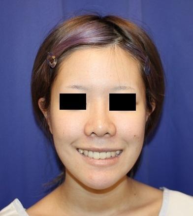 口元を引っ込める手術 : 上下顎歯槽骨骨切り移動術(上下顎セットバック手術) 術後約3か月再診時_d0092965_04415612.jpg