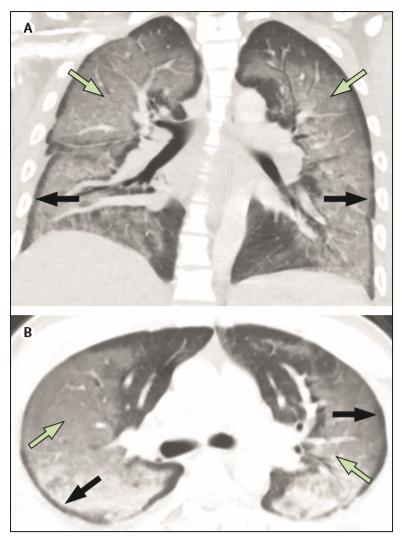 EVALI:電子たばこ関連肺傷害のほとんどはTHC含有製品が原因_e0156318_10411.png