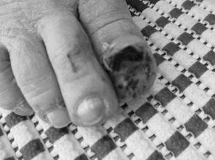爪剥がれた_b0320131_11042768.jpg