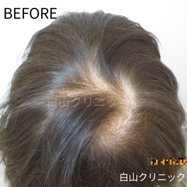 FAGA(女性型脱毛症)治療_a0206544_12324879.jpg