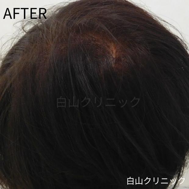 FAGA(女性型脱毛症)治療_a0206544_12330031.jpg