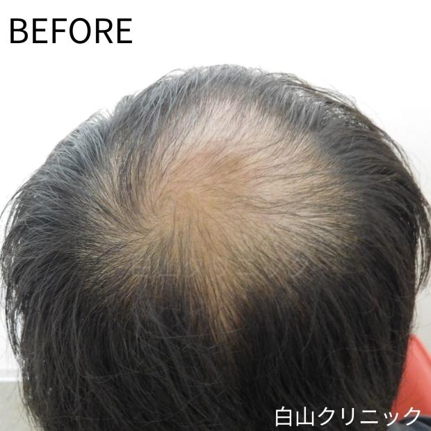 AGA(男性型脱毛症)治療 _a0206544_13235267.jpg