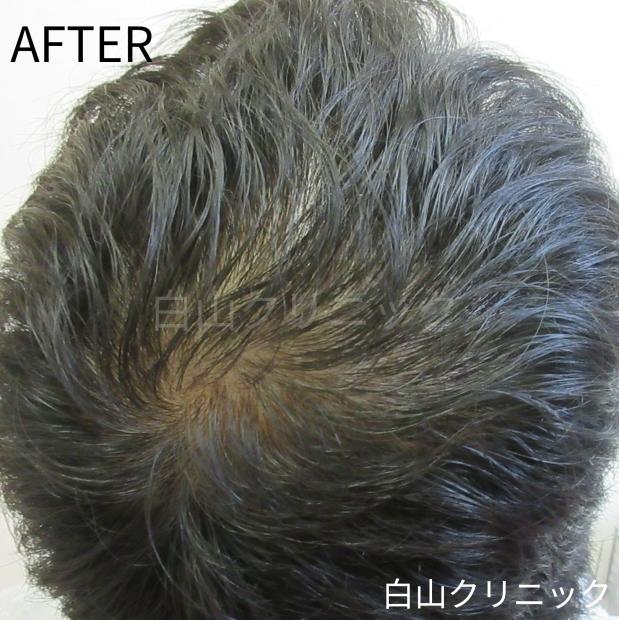 AGA(男性型脱毛症)治療 _a0206544_13273212.jpg
